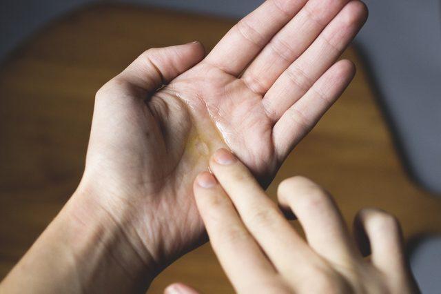 Rửa mặt bằng dầu jojoba